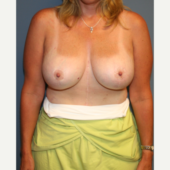 45-54 year old man treated with Breast Lift with Implants after 3475994