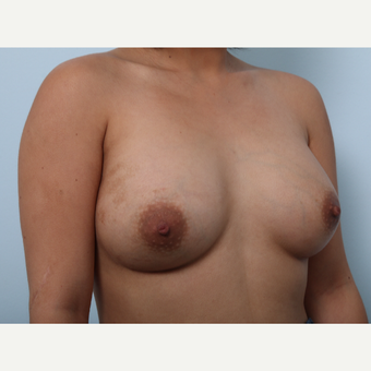 Breast Augmentation after 3339927