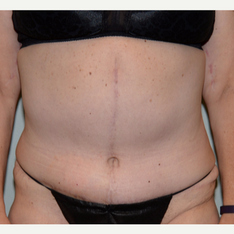 45-54 year old woman treated with Tummy Tuck after 3736617