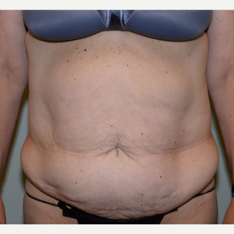 45-54 year old woman treated with Tummy Tuck before 3736617