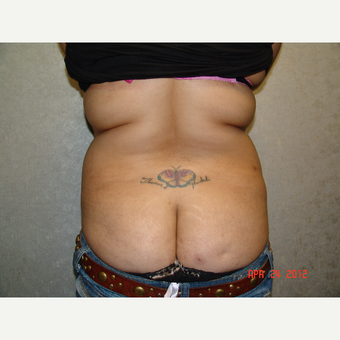 25-34 year old woman treated with Tummy Tuck before 3175095