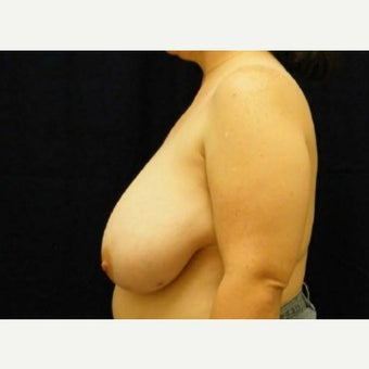 Breast Reduction 1596792