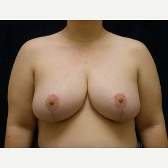 Breast Reduction after 1596792