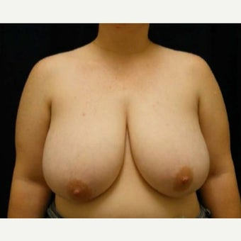 Breast Reduction before 1596792