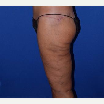 45-54 year old woman treated with Thigh Lift after 3755281