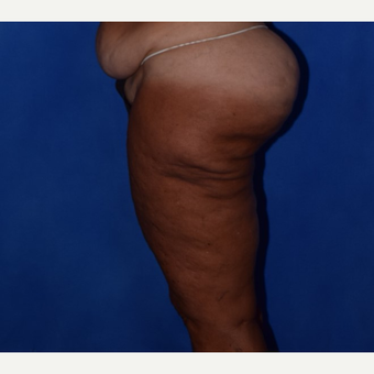 45-54 year old woman treated with Thigh Lift before 3755281