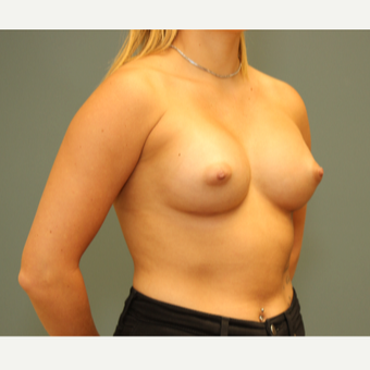 25-34 year old woman treated with Breast Augmentation after 3094483