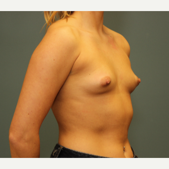25-34 year old woman treated with Breast Augmentation before 3094483