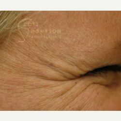 45-54 year old woman treated with Botox before 3458226