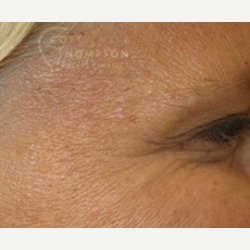 45-54 year old woman treated with Botox after 3458226