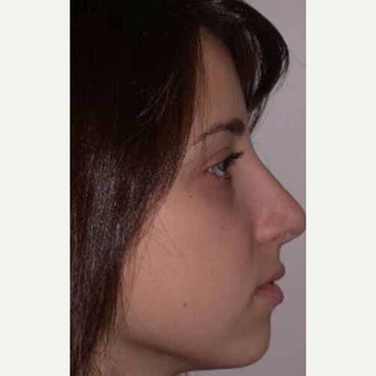 25-34 year old woman treated with Rhinoplasty after 3521258