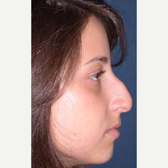 25-34 year old woman treated with Rhinoplasty before 3521258