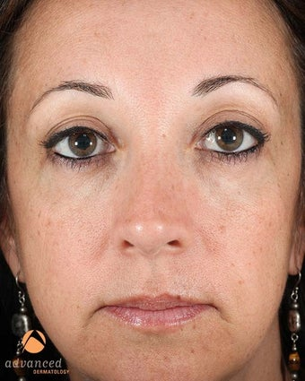 Female Patient Treated with Restylane & Perlane