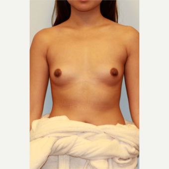 18-24 year old woman treated with Breast Implants before 3412854