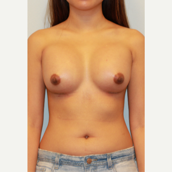18-24 year old woman treated with Breast Implants after 3412854