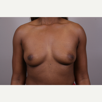 35-44 year old woman treated with Breast Augmentation before 3768628