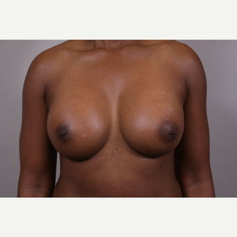 35-44 year old woman treated with Breast Augmentation after 3768628