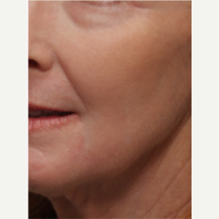 45-54 year old woman treated with Chemical Peel after 3646210