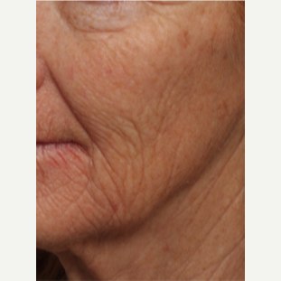 45-54 year old woman treated with Chemical Peel before 3646210