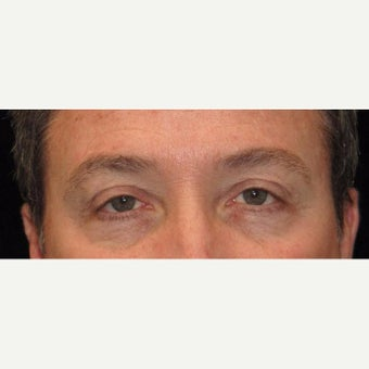 48 Year Old Man with Upper Eyelid Surgery (Blepharoplasty) before 2284889