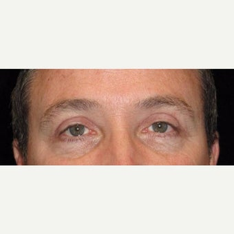 48 Year Old Man with Upper Eyelid Surgery (Blepharoplasty) after 2284889