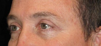48 Year Old Man with Upper Eyelid Surgery (Blepharoplasty) 2284889