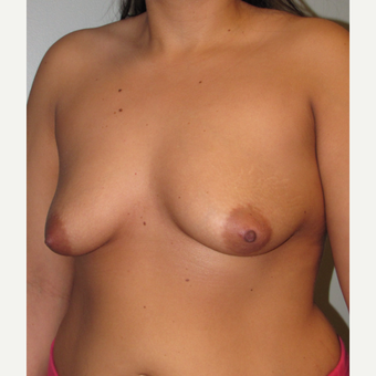25-34 year old woman treated with Breast Lift with Implants before 3124217
