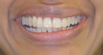 Adult Orthodontics with Clear Braces after 3659960