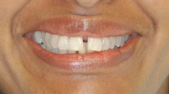 Adult Orthodontics with Clear Braces before 3659960