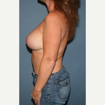 35-44 year old woman treated with Breast Lift with Implants after 3475257