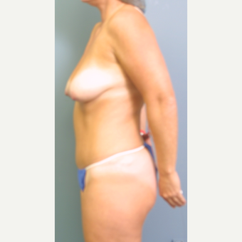35-44 year old woman treated with Breast Lift with Implants before 3475257
