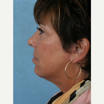 55-64 year old woman treated with Facelift after 3032762