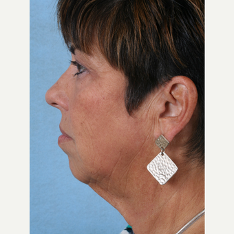 55-64 year old woman treated with Facelift before 3032762