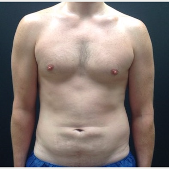 35-44 year old man treated with Male Tummy Tuck before 3768858