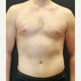 35-44 year old man treated with Male Tummy Tuck after 3768858