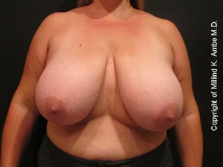 47 Year Old Female Breast Reduction Patient before 1128400