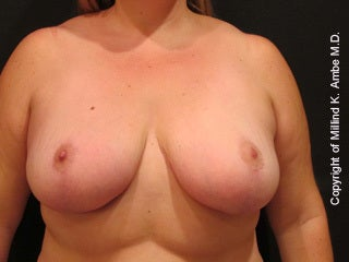 47 Year Old Female Breast Reduction Patient after 1128400