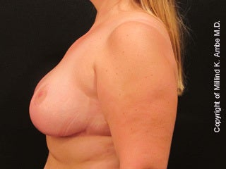 47 Year Old Female Breast Reduction Patient 1128400