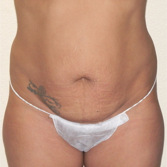 35 yr old woman treated with Tummy Tuck and Liposuction for contouring. before 3174312