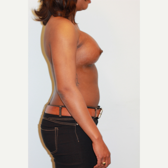 25-34 year old woman treated with Breast Augmentation after 3026852