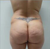 Brazilian butt lift surgery before 2894439