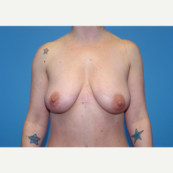 25-34 year old woman treated with Inspira Breast Implants before 3440125
