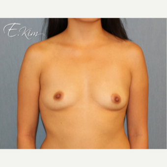 25-34 year old woman treated with Breast Lift with Implants before 3102642