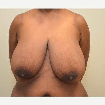 45 year old female Bilateral Breast Reduction