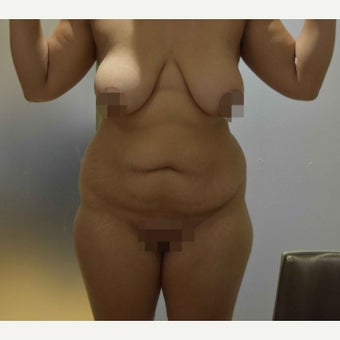 25-34 year old woman treated with Tummy Tuck before 2596233