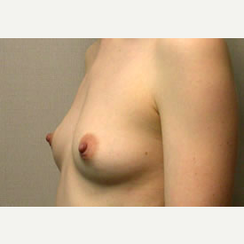 Breast Augmentation before 3680773