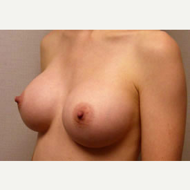 Breast Augmentation after 3680773