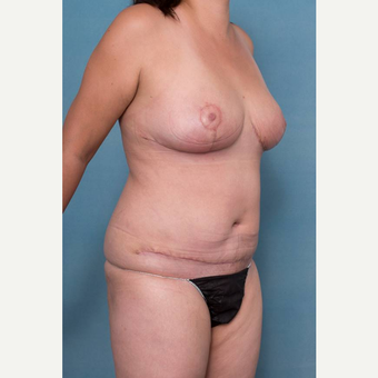 25-34 year old woman treated with Mommy Makeover after 3341653