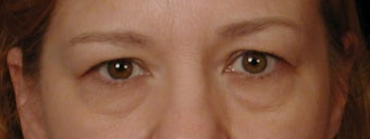 35-44 year old woman treated with Eyelid Surgery before 3658917