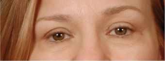 35-44 year old woman treated with Eyelid Surgery after 3658917